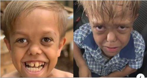 """Criança Com Nanismo Diz Após Sofrer Bullying """"quero Morrer"""", Mãe Faz Desabafo"""