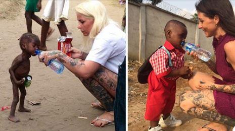 A Incrível História Do Menino Desnutrido Que Foi Resgatado!