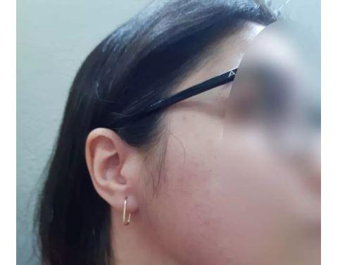 Professora Agredida Com SOCO Por Mãe De Aluno Após Trocá-lo De Classe