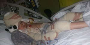 Menina e 5 anos, lutou pela vida depois de derrubar fritadeira enquanto brincava com a irmã!