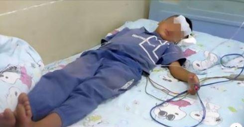 Criança De 3 Anos, Tosse Sangue Por 10 Dias E Descobre Que Uma Sanguessuga Esta Presa Na Garganta!