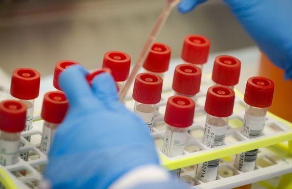 Novo Teste De Coronavírus Fornece Resultado Em Apenas Duas Horas